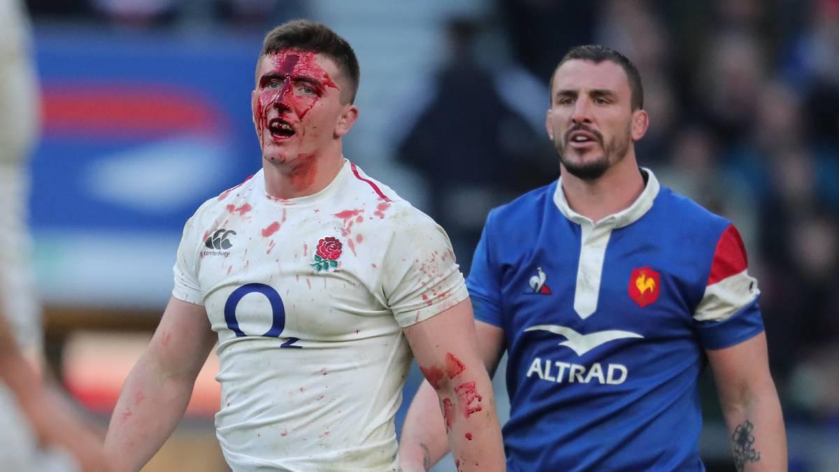 Top10: Die gefährlichsten Sportarten - Rugby